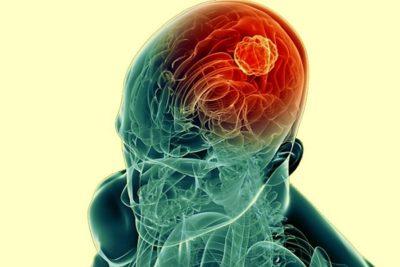 энцефалит возникает по вине разнообразных микроорганизмов, которые попадают мозга через кровь
