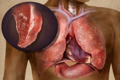 основные симптомы фибринозного плеврита – это лихорадка и болезненные ощущения в очаге поражения плевры
