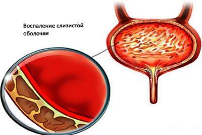 цистит - нарушение функций мочевого пузыря и воспаление слизистой оболочки