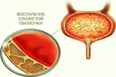 циститом называют воспалительный процесс слизистой оболочки, которая выстилает полость мочевого пузыря