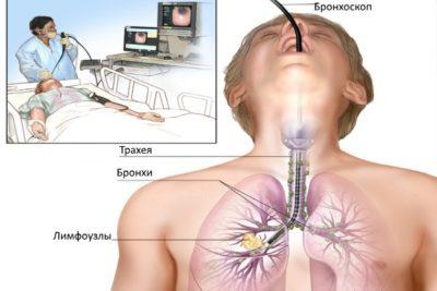 для уточнения диагноза назначают трансбронхиальную биопсию, то есть забор содержимого лимфоузла.