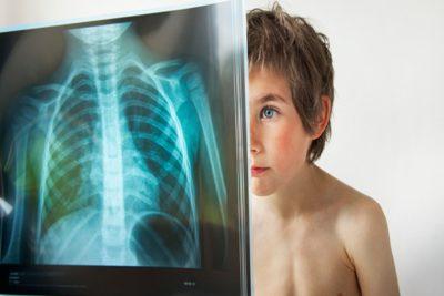 признаки воспаления легких у детей могут отличаться в зависимости от возраста ребенка