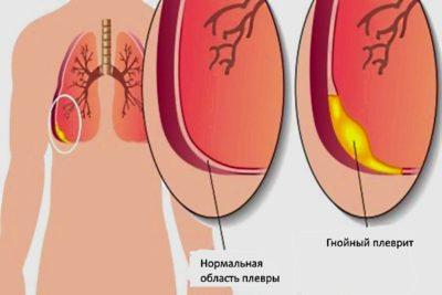 плеврит может осложниться прорывом гнойного содержимого плевральной полости в бронхи