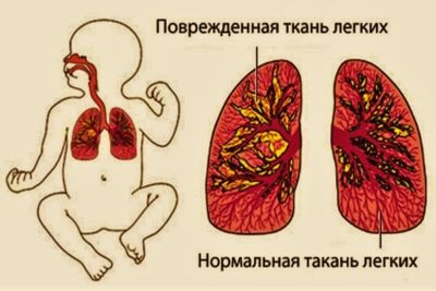 дети гораздо тяжелее переносят пневмонию, чем взрослые