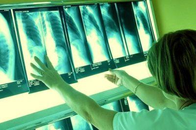 II стадия саркоидоза выявляется на рентгене поражением легких без образования фиброза