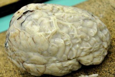 cпровоцировать развитие и прогрессирование заболевания оболочек головного мозга способны вирусы, болезнетворные бактерии, простейшие
