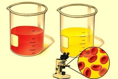 при появлении кровотечений в клиническом анализе мочи обнаруживается повышенный уровень содержания эритроцитов