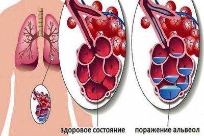 инфекционное поражение затрагивает альвеолы, где происходит газообмен