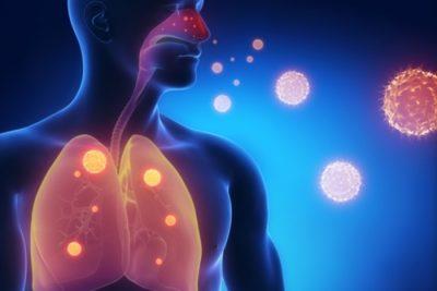 воспаление может быть первичным (самостоятельное заболевание) или вторичным (как осложнение иной патологии)