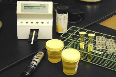 диагностика половых инфекций проводится с помощью специальных анализов