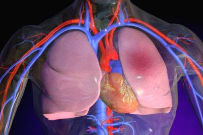 пневмония – это группа заболеваний, характеризующихся воспалительным процессом в легких