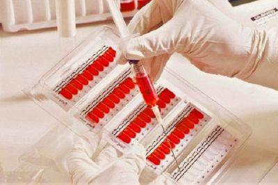 ранним индикатором воспалительного процесса является увеличение уровня С-реактивного белка
