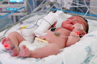 при диагностировании врожденной пневмонии ребенка помещают в реанимацию