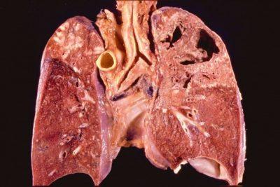 пневмония – инфекционная болезнь, очаг которой бывает расположен в одном или двух легких