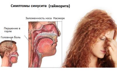 при заболеваниях около носовых пазух основной процесс развивается в лицевой области черепа