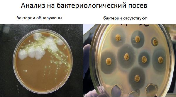 больной обязательно должен сдать мазок из горла для бактериального посева в лаборатории