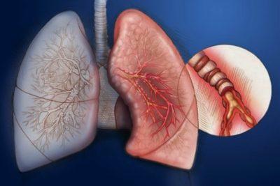 бронхит и пневмония по клиническим проявлениям довольно схожи, как правило, имеют инфекционную природу заболевания