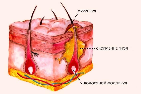 воспаление вросшего волоса в паху