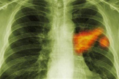 по мере прогрессирования заболевания происходит прорастание опухоли в близлежащие органы