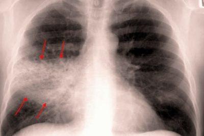 в большинстве случаев воспаление легких развивается после перенесенных респираторных заболеваний вирусной природы – гриппа, острой формы бронхита