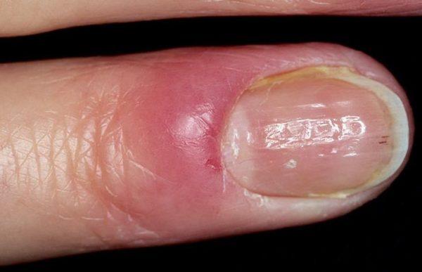 Опух палец на руке возле ногтя что делать или ушиб ногтя на руке
