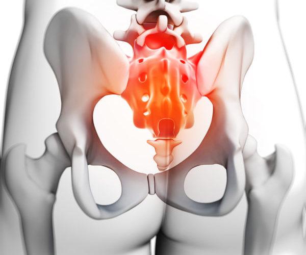 Воспаление копчика у женщин и мужчин симптомы и лечение