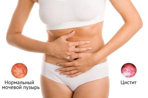 Правильное питание и диета при воспалении мочевого пузыря у женщин и мужчин
