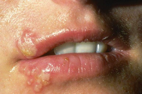 Постгерпетическая невралгия тройничного нерва