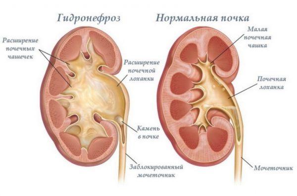 От воспаления почек: таблетки, особенности приема и курсы лечения