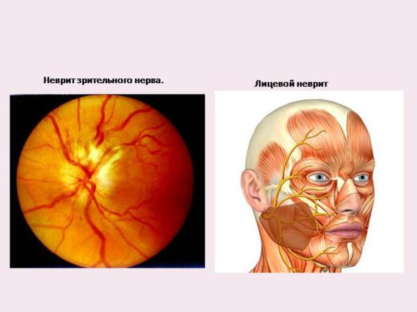 Лечение невралгия глазного нерва - Болезни нервов