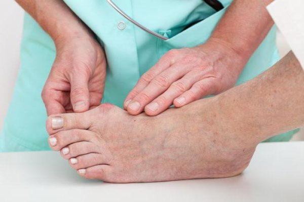 Как снять воспаление косточки на большом пальце ноги - лечение