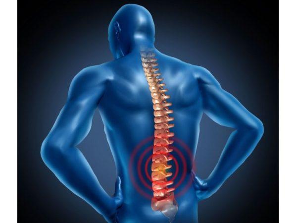Спондилит позвоночника симптомы и лечение