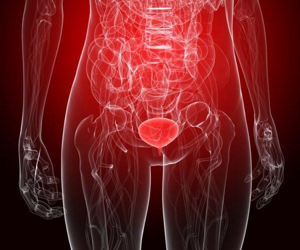 Воспаление мочевыводящих путей у женщин
