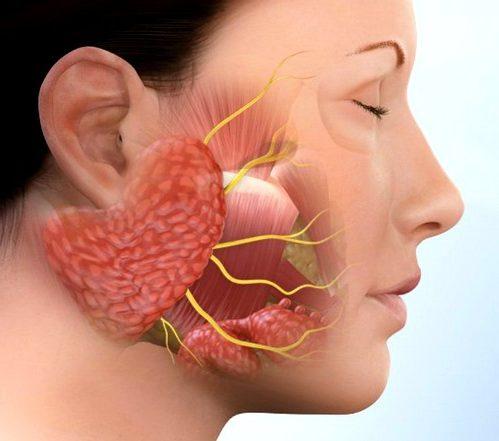 Вирусное воспаление околоушной слюнной железы